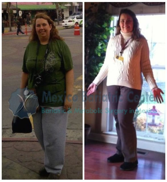 gastric bypass surgery mexico reviews