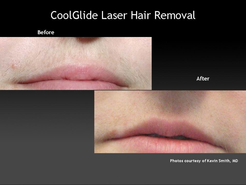 cutera coolglide laser hair removal reviews